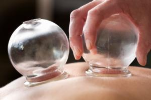 iStock_000012491909_ExtraSmall - cupping